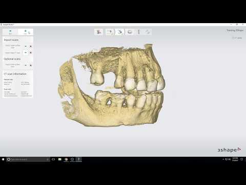3Shape Implant Studio Single Tooth Tutorial