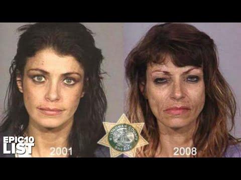 10 MUGSHOTS of People Before & After DRUG ABUSE