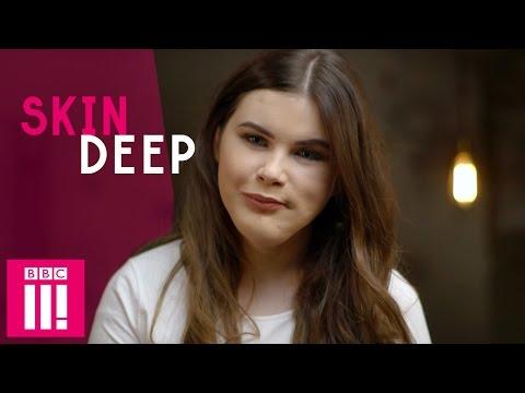 Owning My Looks Despite Facial Disfigurement   Katie   Skin Deep