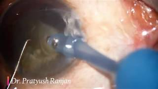 Topical Phaco in Posterior Subcapsular Cataract  (PSC)