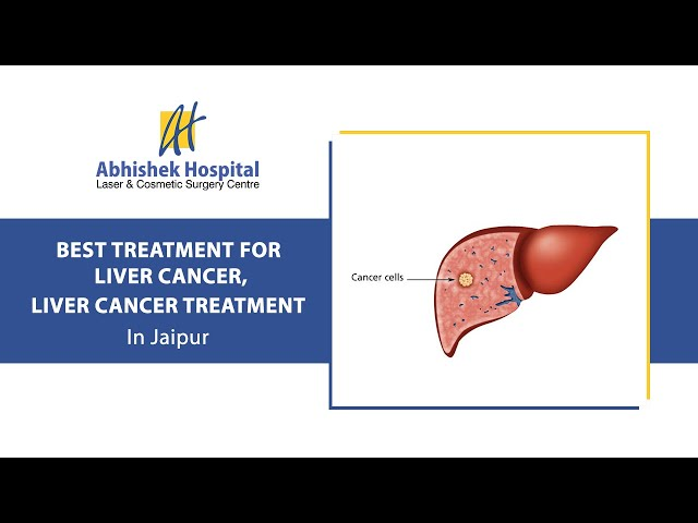 Best Treatment For Liver Cancer, Liver Cancer Treatment In Jaipur (in Hindi)
