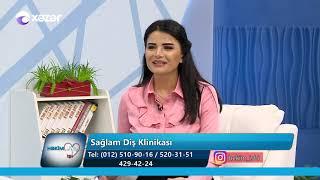 Vinirlər, onlara qulluq qaydaları - Həkim İşi 21.02.2019