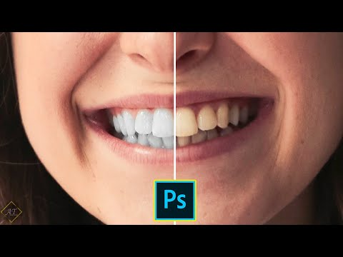 The Best & Fast Way To Whiten Teeth Using Photoshop | Photoshop Tutorial thumbnail
