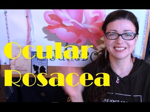 Everything I've Learned About Ocular Rosacea So Far | Rosy JulieBC