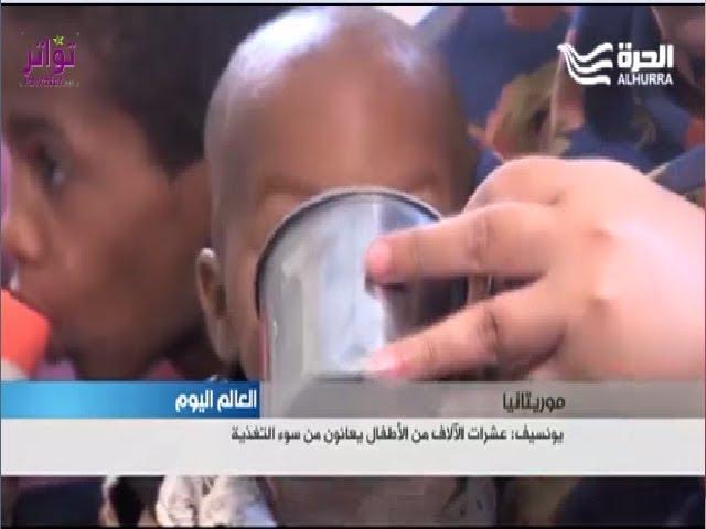 يونيسف: عشرات آلاف الأطفال في موريتانيا يعانون من سوء التغذية - تقرير محمد فاضل لقناة الحرة