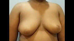 Severe Gynecomastia 13 year old Male by Dr Lebowitz, Long Island Gynecomastia Center, New York.