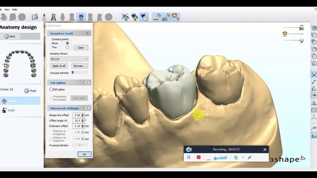 Digital Crown Design in 3Shape Dental System 2009