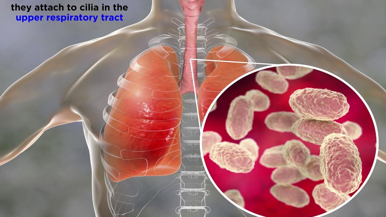 nyaklánc szívféreg ellen
