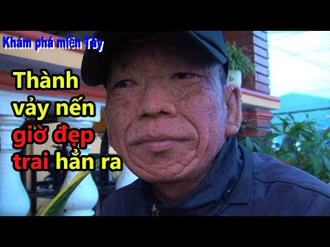 Anh Thành Vảy Nến Quá Dày Bôi Thuốc Thầy Hải Ngứa Tròn 1 Tháng Và Kết Quả/KPMT