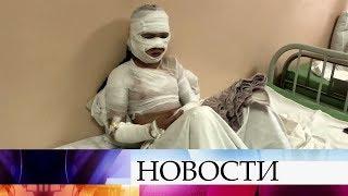 В Иркутске восемь школьников получили ожоги во время познавательного шоу.
