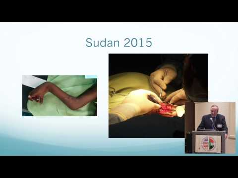 2015 AGM - CCHMC Surgical Mission to Sudan