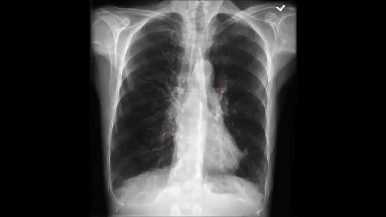 Chest X-Ray (CXR) Analysis - YouTube
