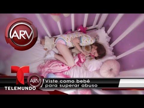 La joven de 24 años que vive como un bebé | Al Rojo Vivo | Telemundo