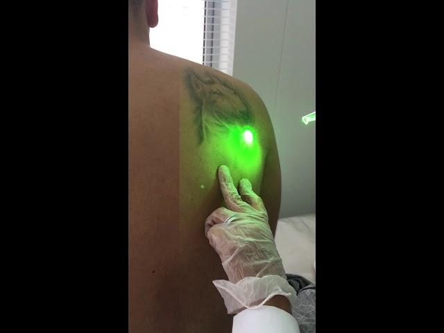Retiro de Tatuaje con Láser