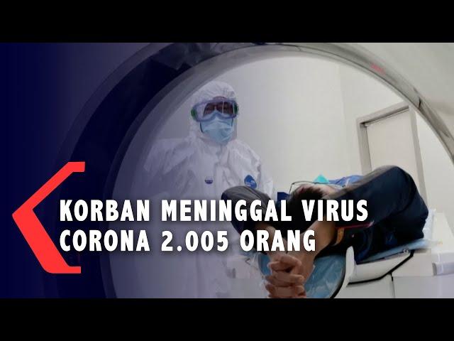 Korban Meninggal Akibat Virus Corona Capai 2.005 Orang