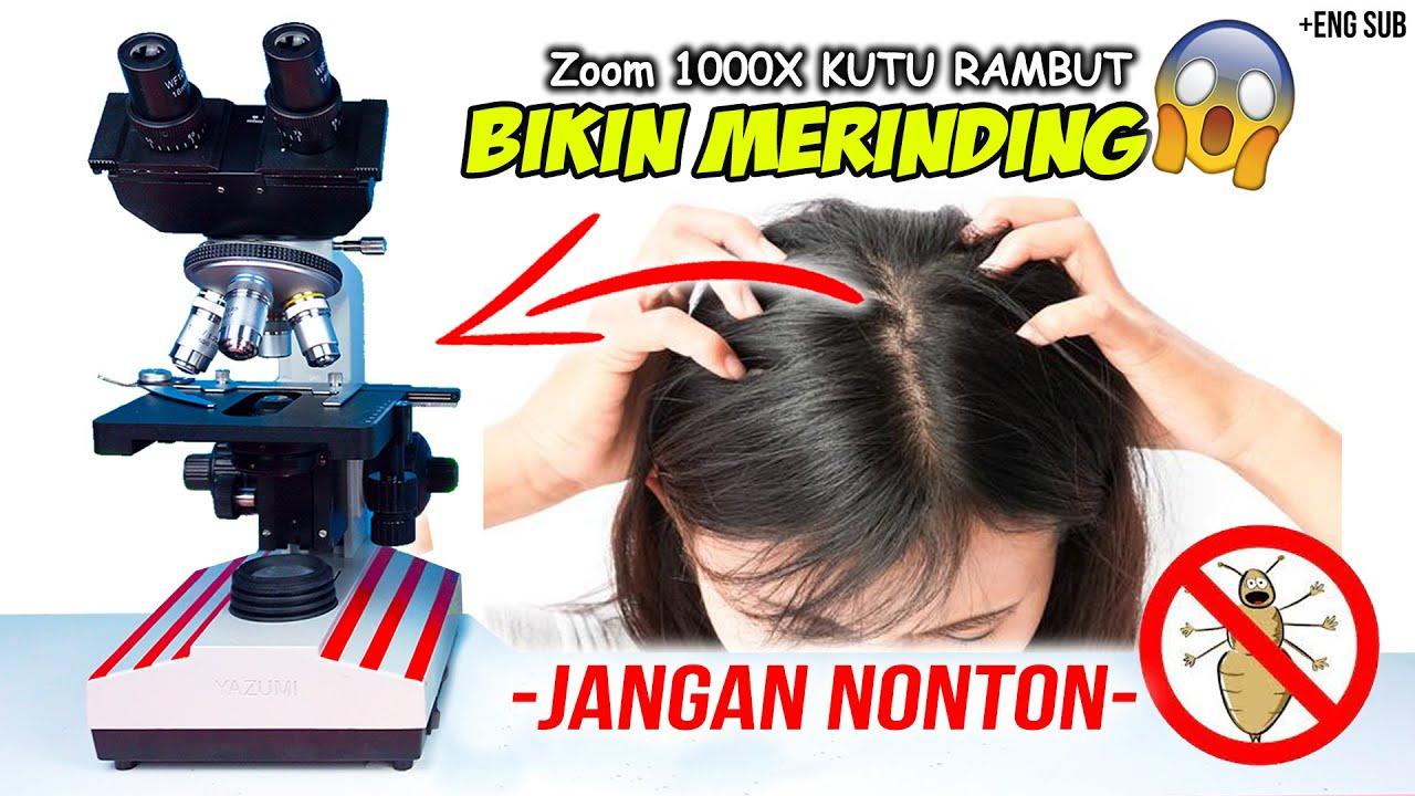 INILAH KUTU RAMBUT DAN TELURNYA DI MIKROSKOP | Head Lice Under Microscope