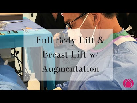 Full Body Lift & Breast Lift w/ Augmentation| Cosmetic Surgery Affiliates