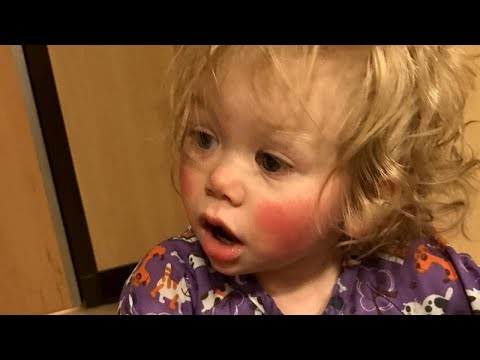 Meet 1-Year-Old Who's Allergic to Tears