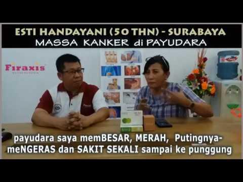Cara Mengobati Kanker Payudara | Obat Kanker Payudara ...