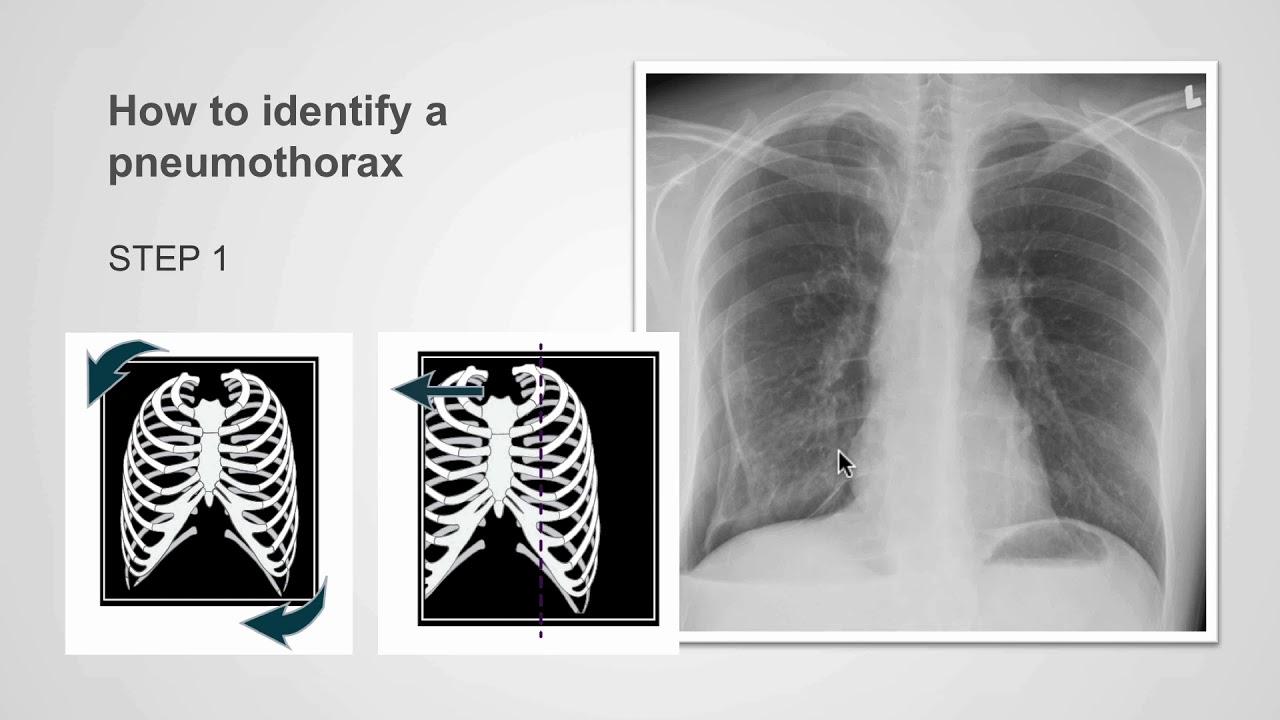 Fáj a mellkasa? A bordaközi fájdalom lehetséges okai - Pneumothorax fogyás