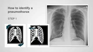 How to identify pneumothorax on a chest X-ray.