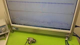オリジナル超音波プローブの「発振・制御」技術 ultrasonic-labo thumbnail