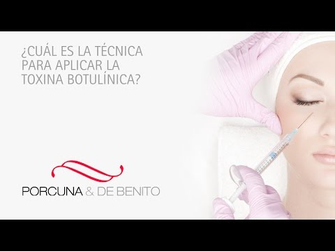 ¿Cuál es la técnica para aplicar la toxina botulínica?