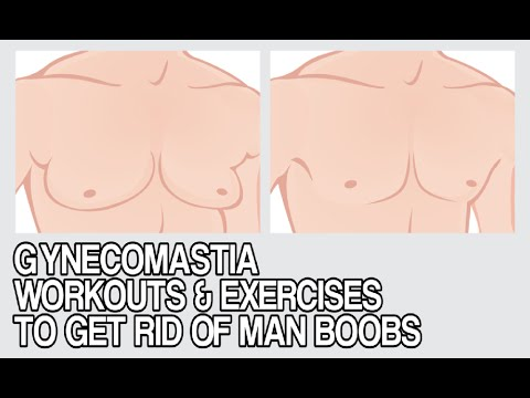 How to Get Rid of Man-Breasts (Moobs) VIDEO