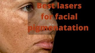 how to treat skin pigmentation