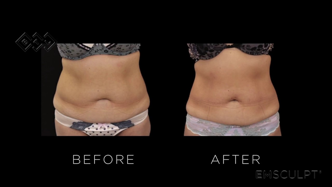 Does EMSCULPT Work? EMSCULPT Reviews, Results, & Photos