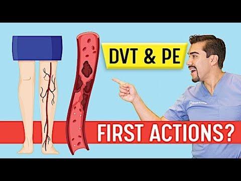 DVT Animation   Deep Vein Thrombosis And Pulmonary Embolism PE   Memory Tricks For Exams NCLEX & Nur