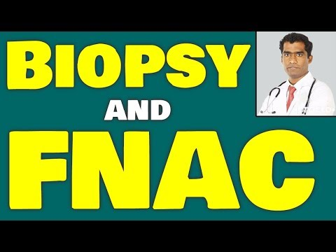 What is Biopsy? | Interventional Radiologist Dr. Shailesh Kumar Garge Talking about Biopsy and FNAC