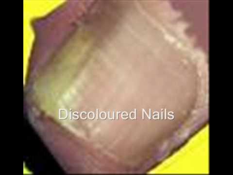 Best Toenail Fungus Cream Online