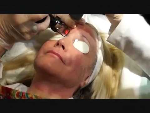 CO2 Fractional Laser Skin Tightening Treatment Los Angeles