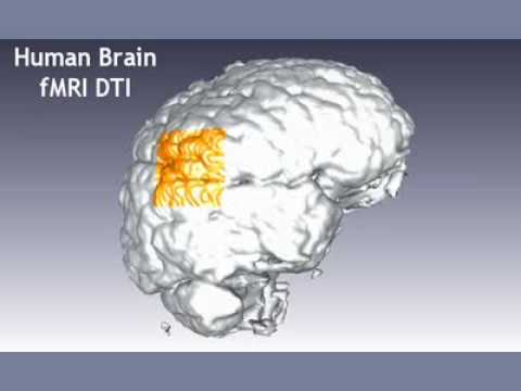 Human Brain Magnetic Resonance / Diffusion Tensor Imaging