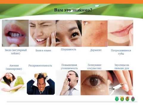 Витамины группы В в таблетках: названия препаратов и отзывы