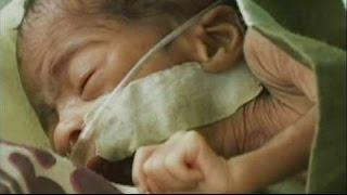 World Prematurity