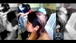 Joven perdió su pelo producto de accidente laboral - CHV NOTICIAS