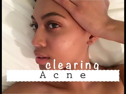SKINCARE | HOW I CLEARED MY SKIN {ACNE FREE}| NATURAL PRODUCTS