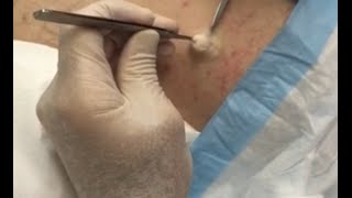 What a Beauty!  Snowy White Sebaceous Cyst Begs to be Seen & Loved! thumbnail