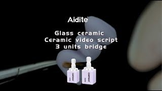 Ceramic video script - Glazed glass 3 units bridge