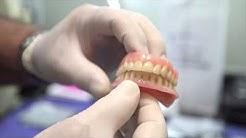Dental Implants For Veteran in Vista, CA
