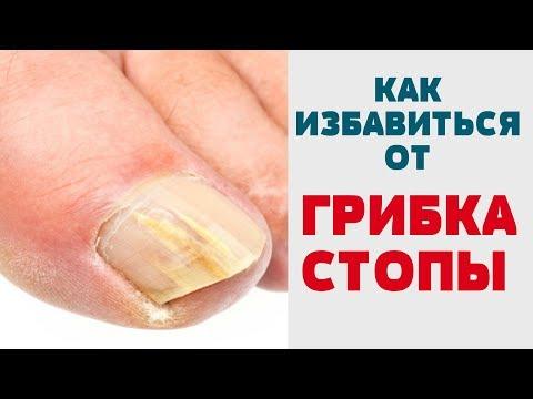 КАК ЛЕЧИТЬ ГРИБОК КОЖИ (СТОПЫ) Избавиться от грибка ногтей Запущенный грибок стопы