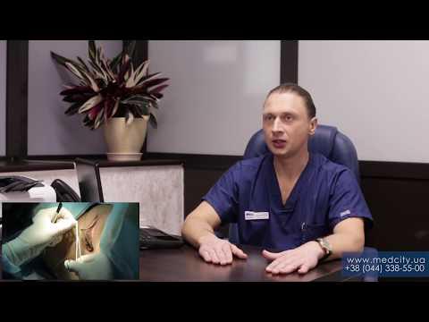 Лазерная лабиопластика — новое решение эстетической проблемы в гинекологии!