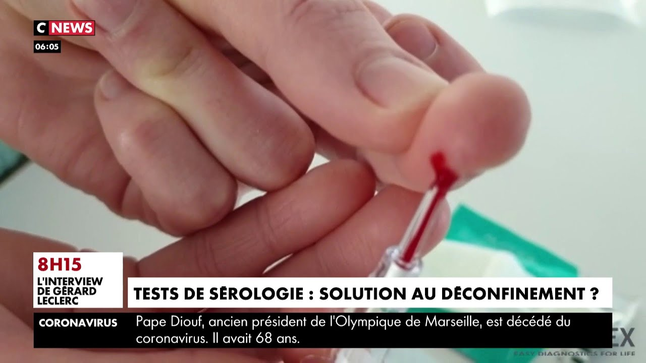Coronavirus : des tests de sérologie, la solution pour sortir du confinement
