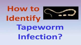 How to identify tapeworm infection