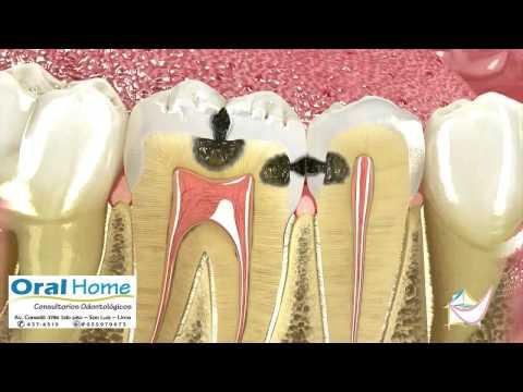 Que es la caries dental