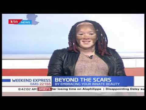 Beyond the scars: How to reach beyond social prejudice