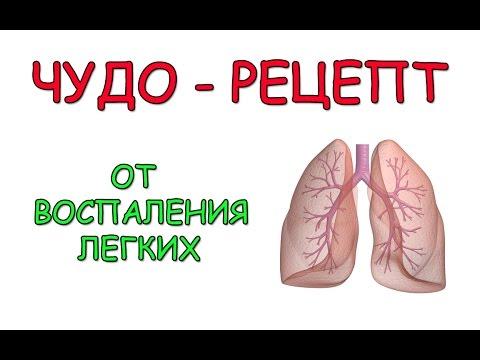 Воспаление легких – антибиотики при воспалении легких