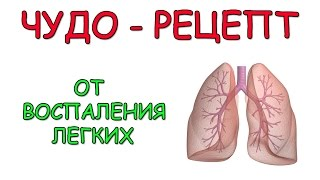 видео Воспаление легких: симптомы и причины, последствия и как лечить воспаление легких у взрослых